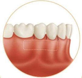 tratamientos de encias especialistas periodontales en madrid