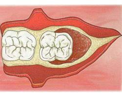 cirugias-encias-clinica-dental-madrid-membrana-1