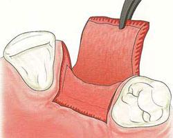 cirugias-encias-clinica-dental-madrid-relleno-oseo-2