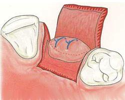 cirugias-encias-clinica-dental-madrid-relleno-oseo-4