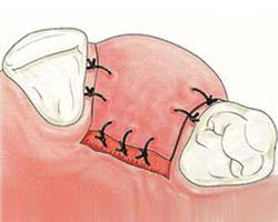 cirugias-encias-clinica-dental-madrid-relleno-oseo-5