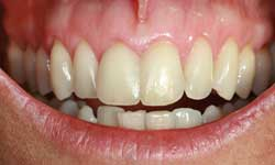 fases-peridontitis-clinica-dental-velazquez-madrid-9