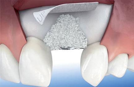 injerto-oseo-cirugias-periodontales