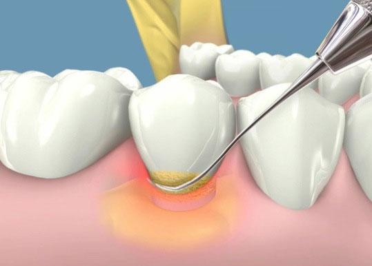 mantenimiento-periodontal-periomadrid