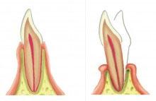 problemas-periodontales-movilidad-dientes