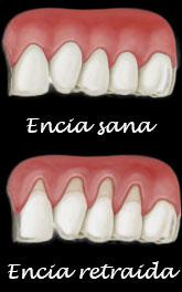 problemas-periodontales-retraccion-encias