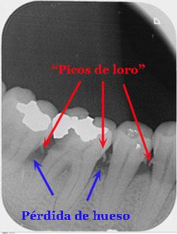 que-es-periodontitis-clinica-velazquez-madrid (2)