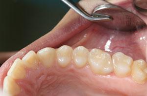 examen oral periodontal