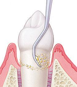 raspado-alisado-radicular-periodontal-madrid (3)