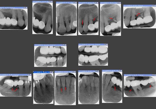 serie-radiografica-periodontal-madrid (1)
