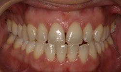 serie-radiografica-periodontal-madrid (2)