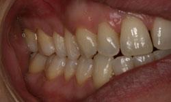 serie-radiografica-periodontal-madrid (3)