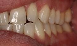 serie-radiografica-periodontal-madrid (4)