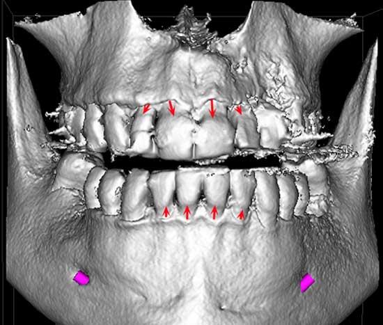 serie-radiografica-periodontal-madrid-(5)