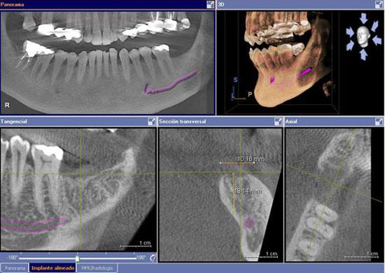 serie-radiografica-periodontitis-madrid