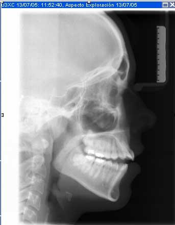radiografia_bucal_telerradiografia