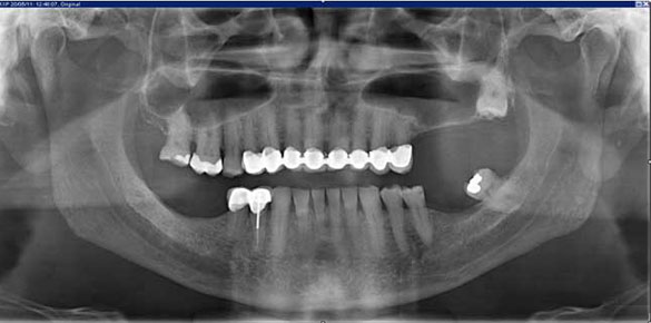 radiografia_panoramica